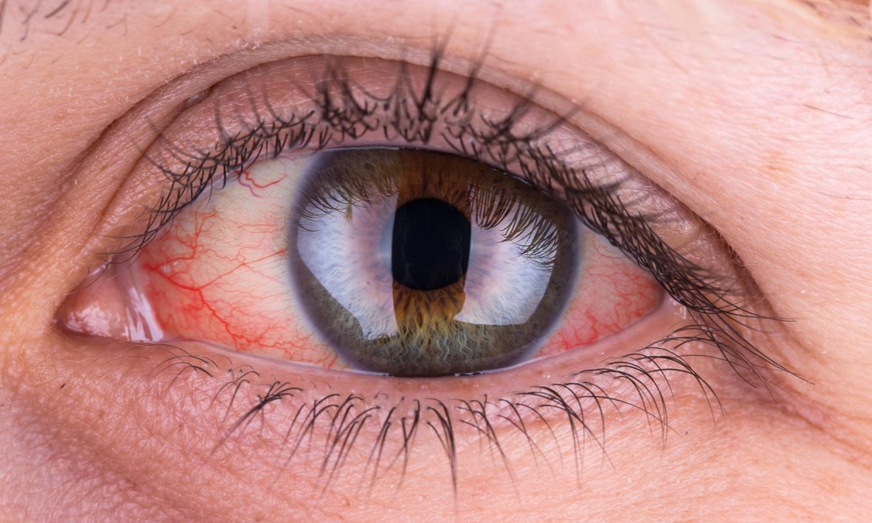 ¿Qué es el ojo rojo?